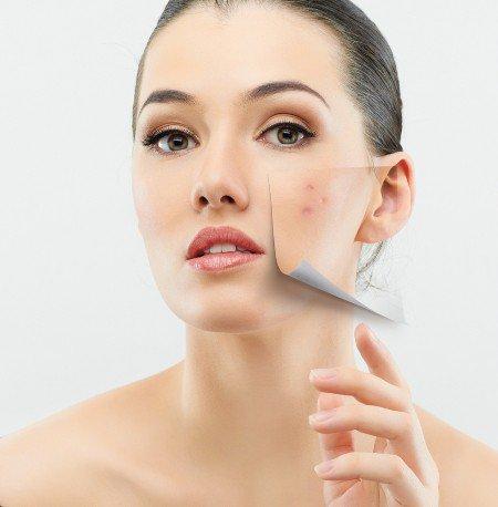 Как сделать чистку лица для проблемной кожи