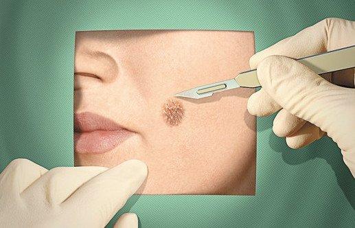 Вакцина против папилломавируса