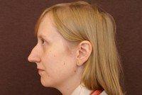 Удлиненная вытянутая форма лица стрижки и прически