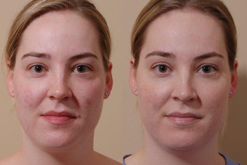 карбоновый пилинг лазером фото до и после для